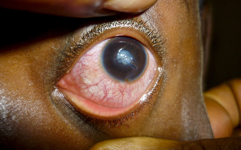 A 10-year-old with corneal laceration and traumatic cataract after a stone hit him in the eye. CAMEROON. Faustin Ngounou